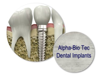 Alpha_Bio_Tec_Implants.jpg