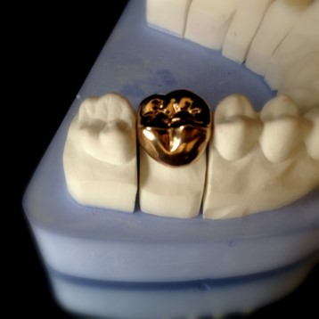 Ceramic-Crowns-in-Chromium-Nickel-Support.jpg
