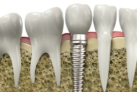 Choosing-the-Right-Type-of-Dental-Implant-for-You.jpg
