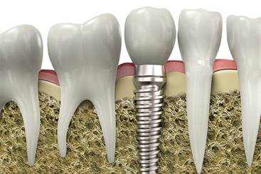 Dental_Implants_in_Romania.jpg