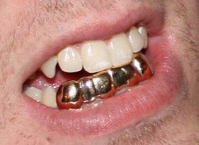 Everything-about-Dental-Grills.jpg
