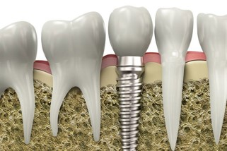 Implant-Dentar-Zimmer-in-Romania.jpg