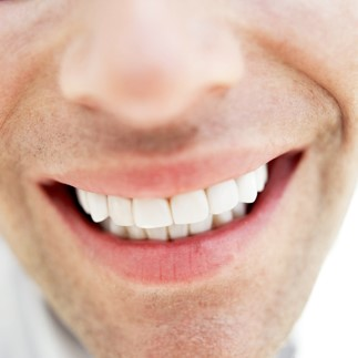 Orthodonics_in_Romania_everything_about_veneers.jpg