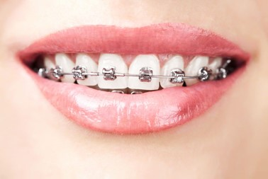 Orthodontics_in_Romania.jpg