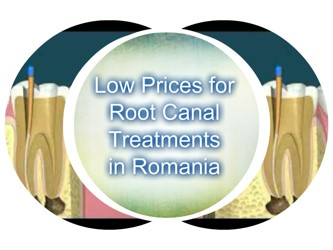 The_lowest_prices_for_root_canal_treatments_in_Europe.jpg