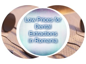 The_lowest_prices_for_surgical_extractions_in_Europe.jpg