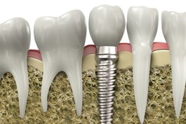 Why-You-Shouldnt-Fear-a-Dental-Implant-Surgery-1.jpg